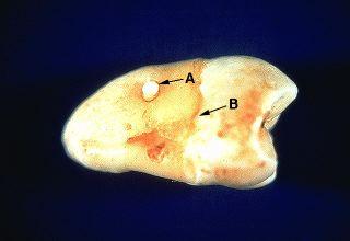 Mandibular Cysts and Odontogenic Tumors Overview
